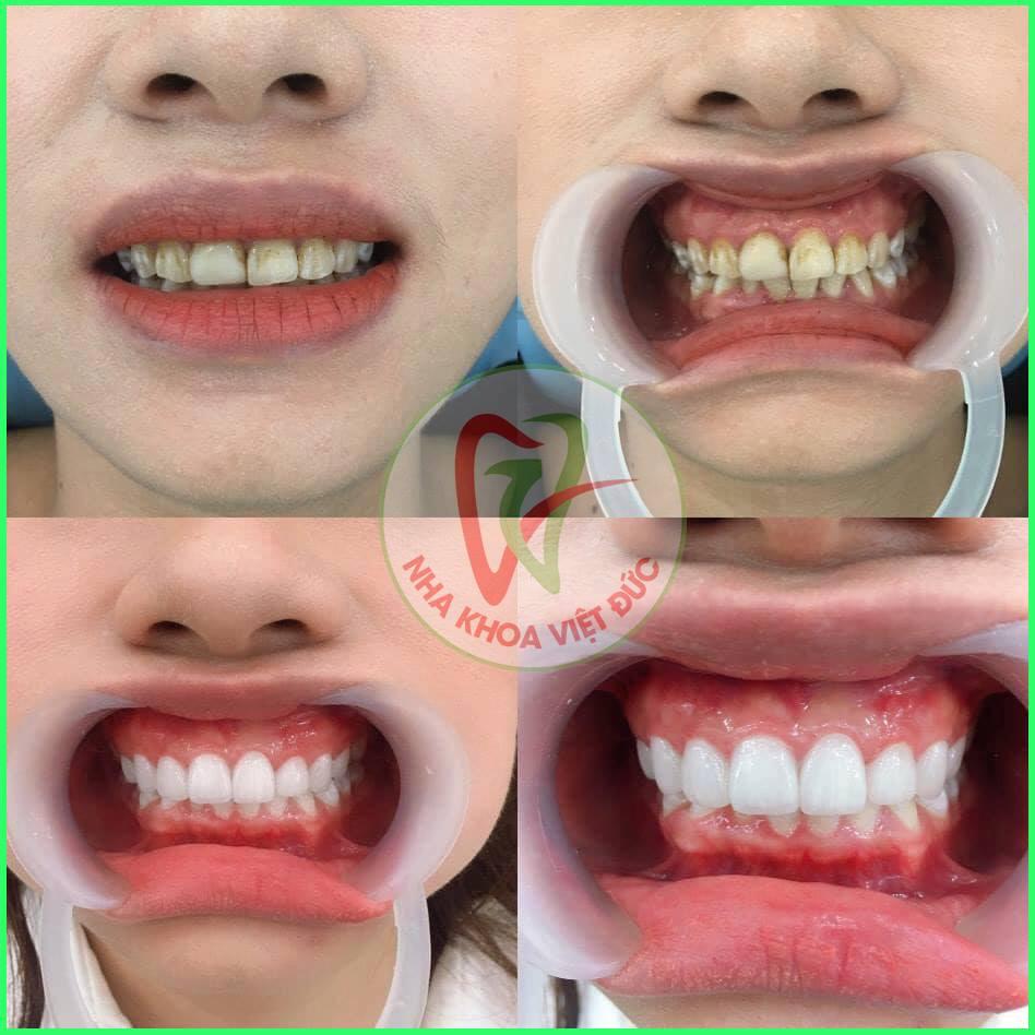 Bọc răng sứ cho răng sâu, sứt mẻ, vỡ lớn