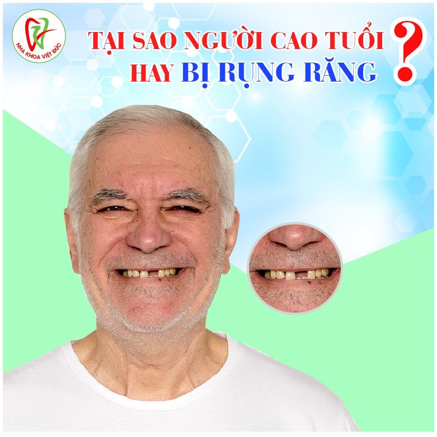 TẠI SAO NGƯỜI CAO TUỔI HAY BỊ RỤNG RĂNG?